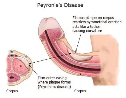 Enfermedad de Peyronie o pene curvado