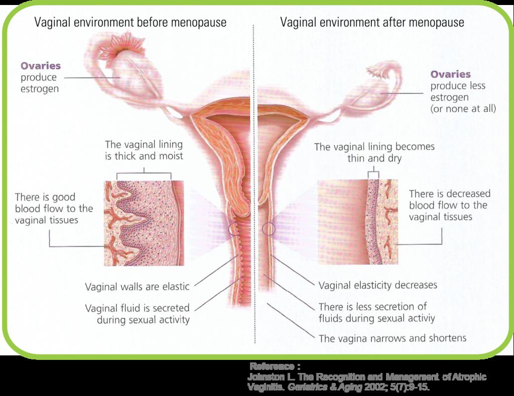 Vaginitis atrófica secundaria a la menopausia